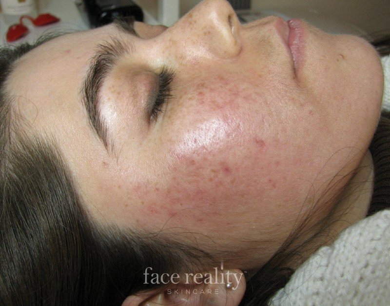 Acne After (2)