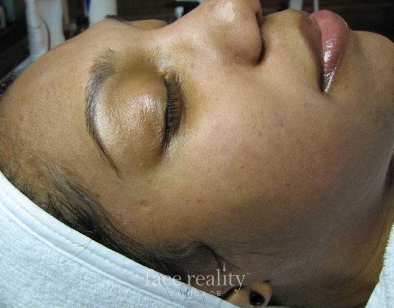 Clear Skin After Acne Treatment